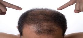 Alopécie : Comment ralentir la chute de cheveux avec les huiles essentielles ?