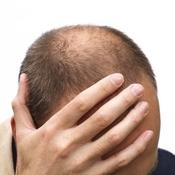 alopécie huiles essentielles stimulantes