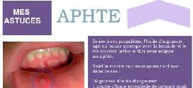 Ma solution contre un aphte