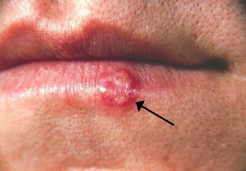 soigner un bouton de fièvre et herpes