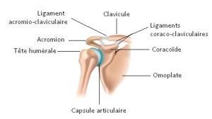 capsulite