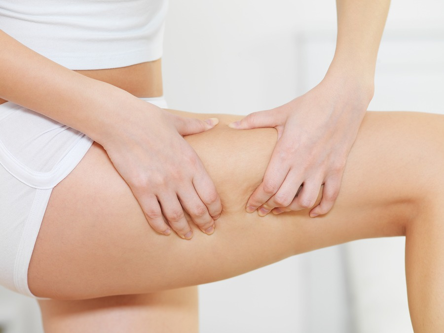 cellulite et cèdre de l'atlas
