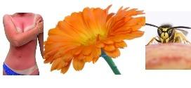 Calendula officinalis : Pour les peaux sensibles ou irritées.