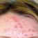Peau acnéique : 4 étapes pour en venir à bout de façon naturelle