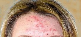 peau acnéique