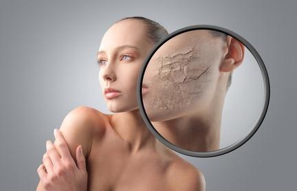 peau déshydratée