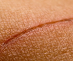 pommade cicatrisante