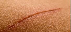 Pommade cicatrisante : Des recettes naturelles et simples