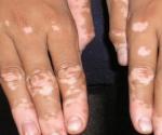 tache blanche sur la peau