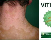 vitiligo huiles essentielles
