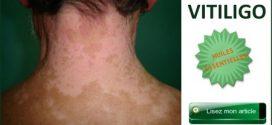 Comment faire partir une tache blanche sur la peau ?