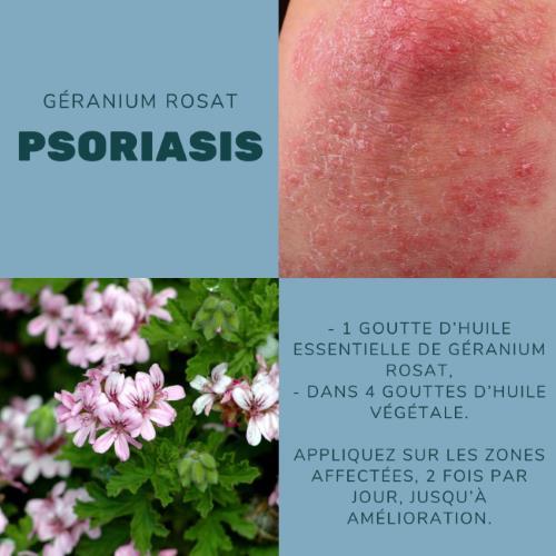 Lutter contre le psoriasis avec le géranium rosat