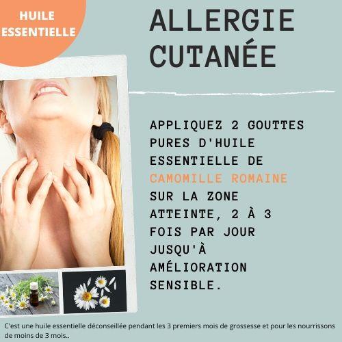 allergie cutanée avec l'huile essentielle de camomille romaine