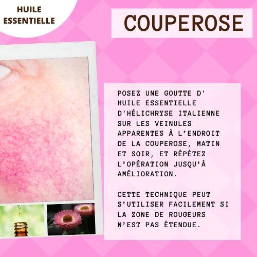 Huile essentielle hélichryse pour la couperose