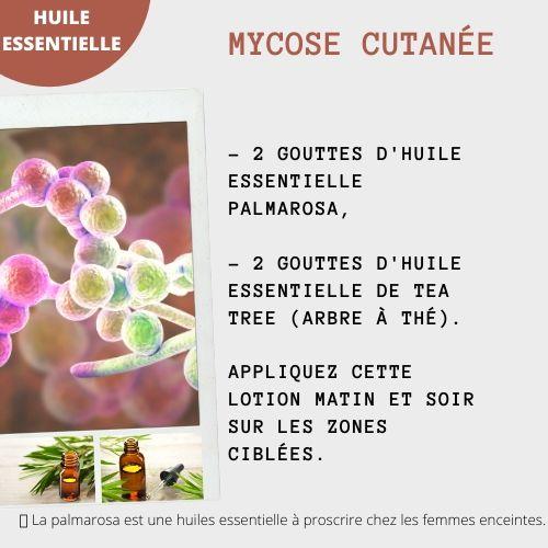 mycose cutanée avec l'huile essentielle de palmarosa