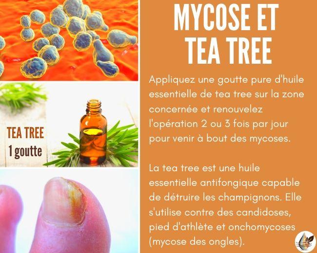 mycose huile essentielle tea tree