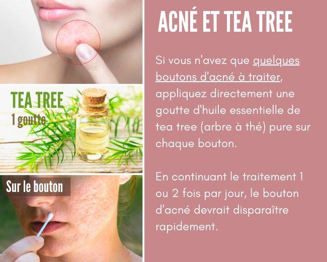 traiter un bouton d'acné avec la tea tree (arbre à thé)