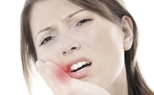Soigner un abcès dentaire avec les huiles essentielles