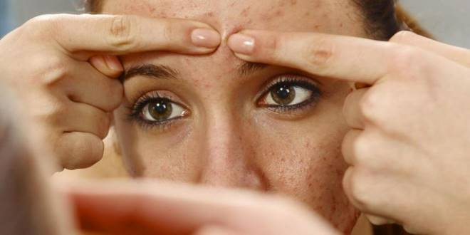 acné huile essentielle
