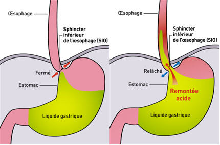 aigreurs estomac reflux gastrique