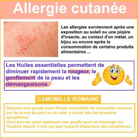 allergie cutanée et huile essentielle camomille romaine