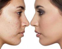 L'huile essentielle de bois de rose : La Star pour les problèmes de peau