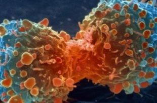 cancer huiles essentielels