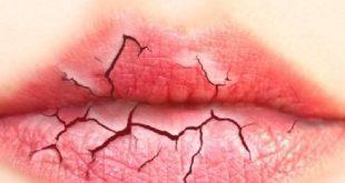 lèvres et mais gercées avec les huiles essentielles
