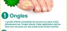 mycose des pieds et des ongles