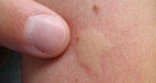 Piqûre de moustique, de guêpe, etc … : Les huiles essentielles répulsives et calmantes