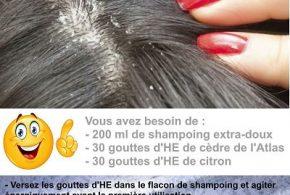 shampoing antipelliculaire aux huiles essentielles