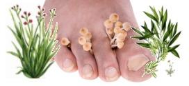Mycoses des pieds et Huiles Essentielle : La puissance de l'arbre à thé