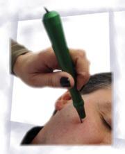 traitement couperose au laser